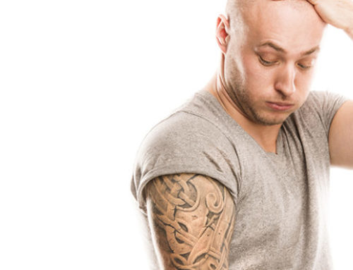 Is Laser Tattoo Removal Expensive?
