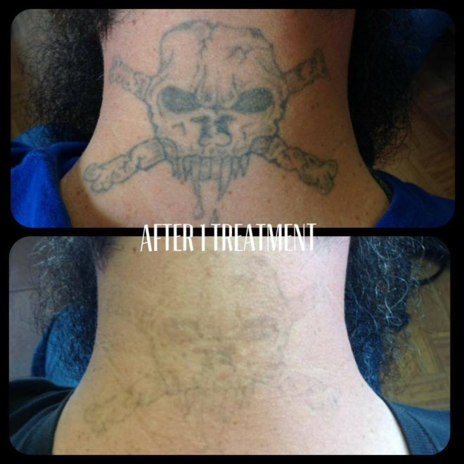 How many laser treatments does it take to remove a tattoo?