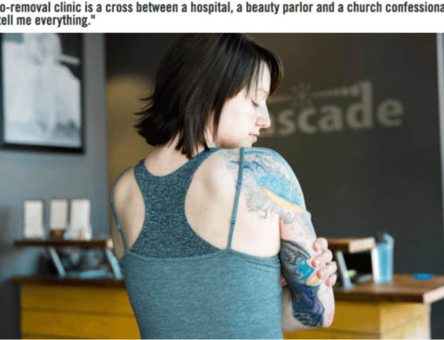 Best Tattoo Removal In Portland Oregon?