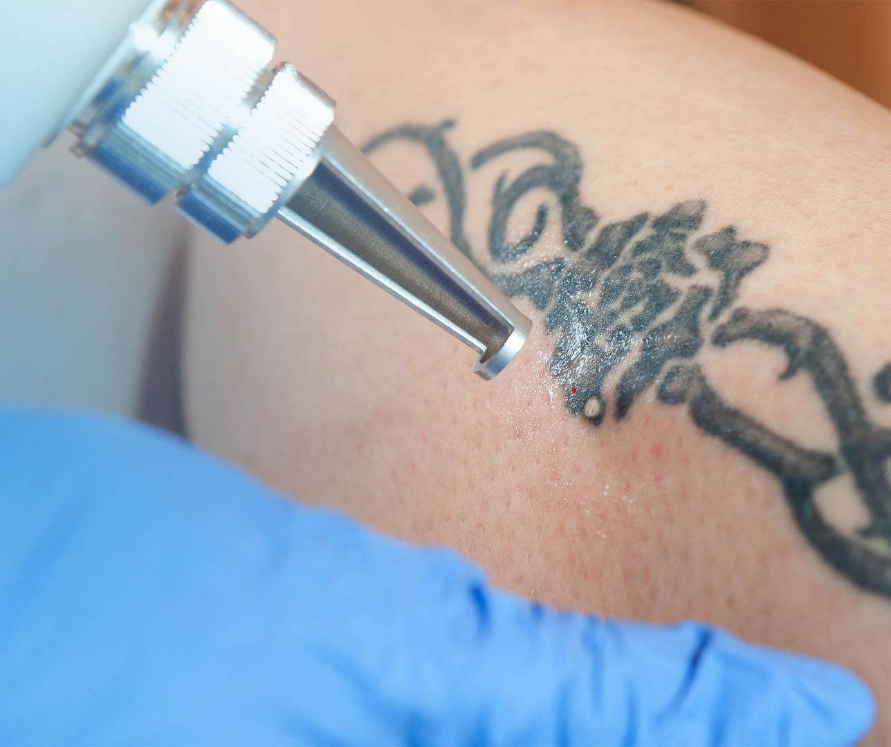 Best Laser Tattoo Removal In Portland Oregon? -