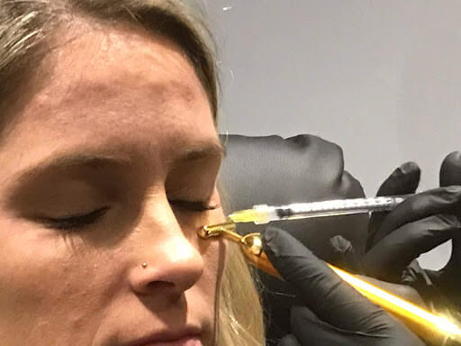 Facial Injections
