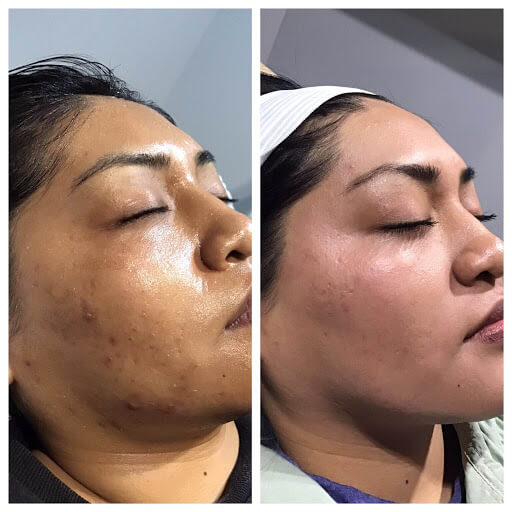 Microneedling, acne scarring, facial