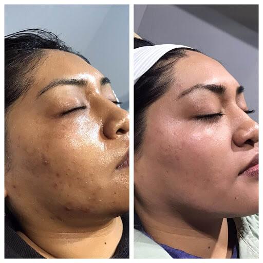 Microneedling, acne scarring, facial
