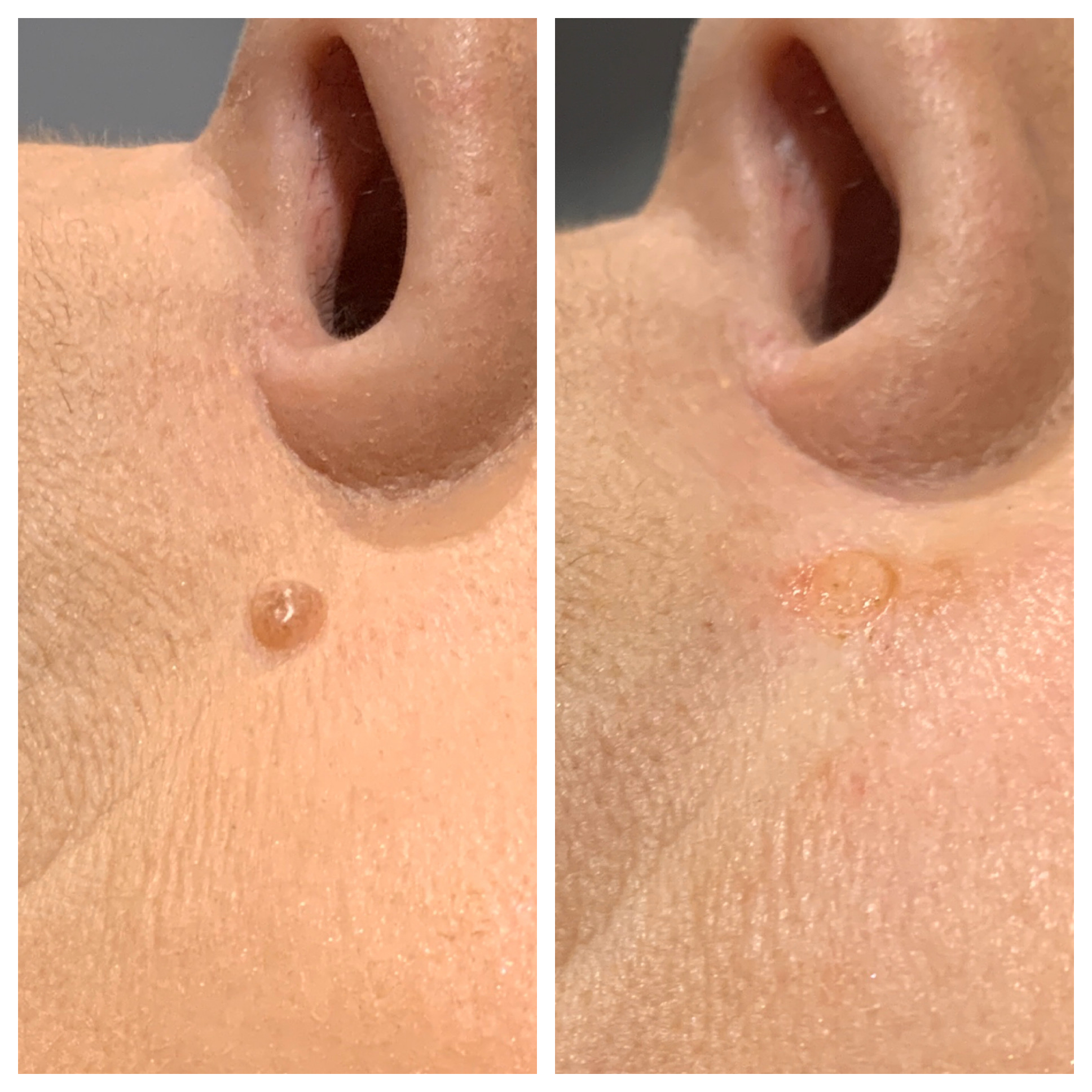 Mole Removal Skin Tag Removal Portland Or
